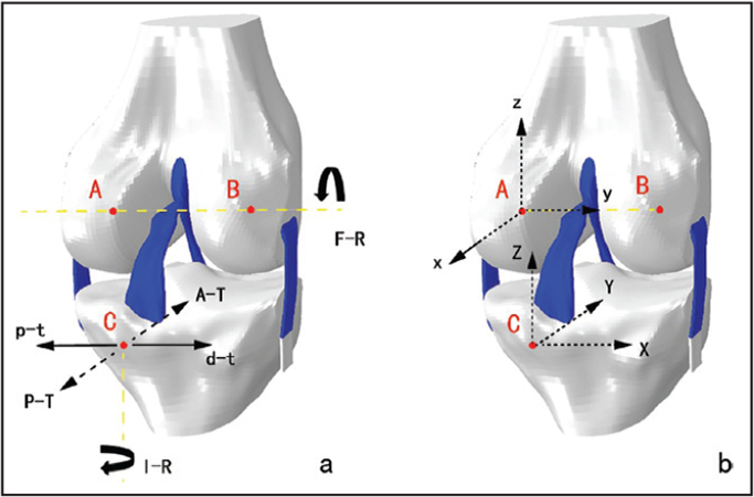 Displacement and rotation are applied to the finite element model: A, medial endpoint of the geometric center axis (femur reference point); B, lateral endpoint of the geometric center axis; C, projection point of A (tibia reference point); A-T, anterior translation; P-T, posterior translation; p-t, proximal translation; d-t, distal translation; F-R, flexion rotation; I-R, internal rotation (a). X-Y-Z coordinate system is the global coordinate system; y axis of the x-y-z coordinate system is overlapped with the geometric center axis (b).