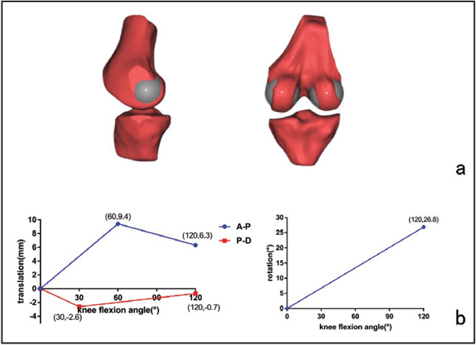 The geometric center axis was set up by inserting 2 balls fitted to the femoral condyles (a). Equations for translation of the medial condyle in the anterior-posterior (A-P) and proximal-distal (PD) directions (b, left). Equation for the tibia internal rotation (b, right).